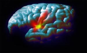 Waarom krijgt straks iedereen Parkinson?